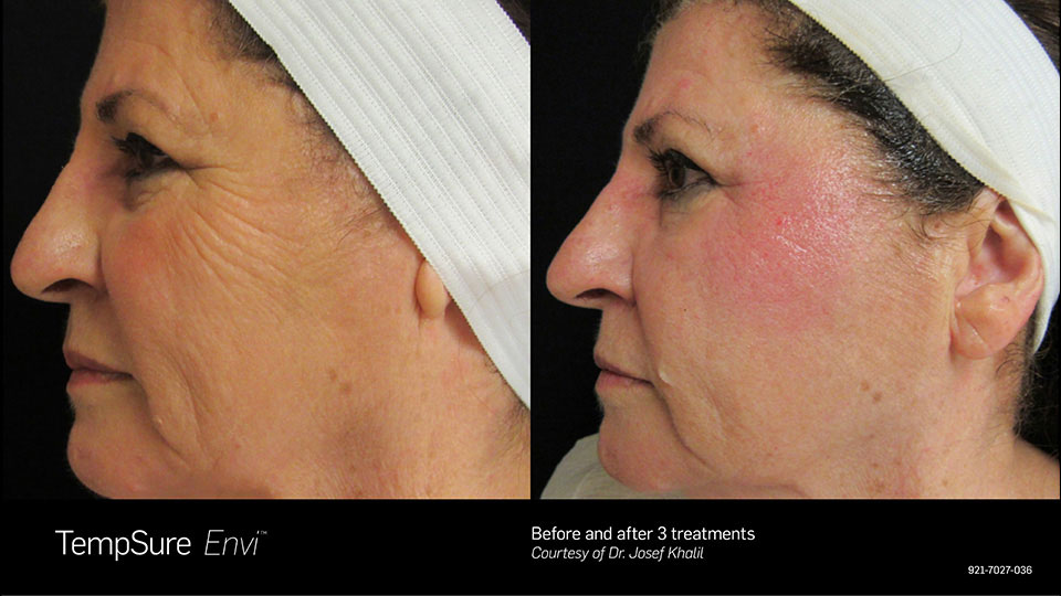 TempSure Before & After